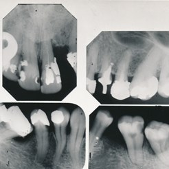 From Collection of Black and White Photographs of Dental Specimens (Rocs 8/3)