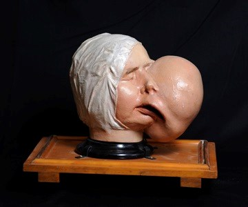 Plaster Model of the Head and Face Showing Deformity Produced by a Large Fibroma of the Left, 1837. Surgeons' Hall Museums, RCSEd